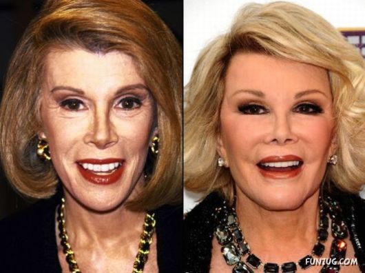 Opinion famous people before and after surgery