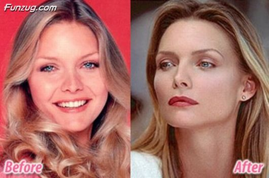 Stars Before and After Plastic Surgery