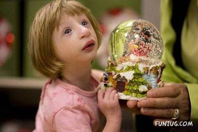 Amazing Smallest Girl in the World